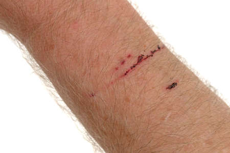 A scratch from a thorn bush on a mans arm.