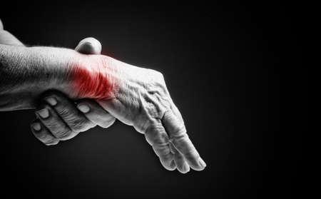 Hogere handen. Die lijden aan pijn en reuma Stockfoto