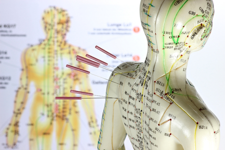 acupuncture needles: female acupuncture model with needles in the shoulder Stock Photo