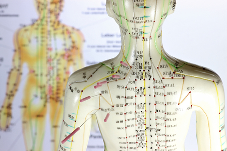 Traditional Chinese Medicine: female acupuncture model with needles in the shoulder Stock Photo