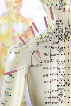 female acupuncture model with needles in the shoulder Banque d'images