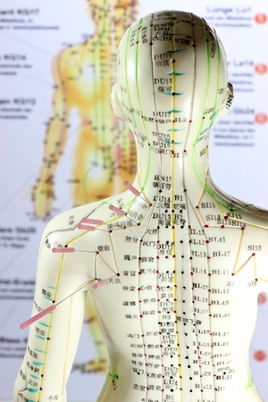 female acupuncture model with needles in the shoulder Imagens