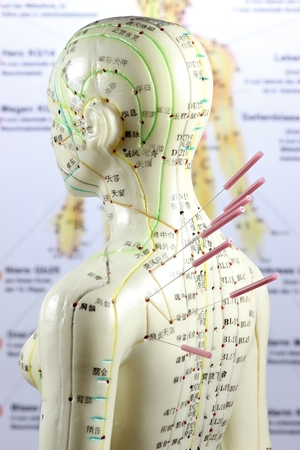 pain management: female acupuncture model with needles in the shoulder Stock Photo