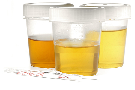 urinalysis: specimen cups for urinalysis with test stripes isolated on white background