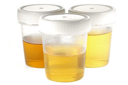 白い背景に分離された尿検査のための試料カップ