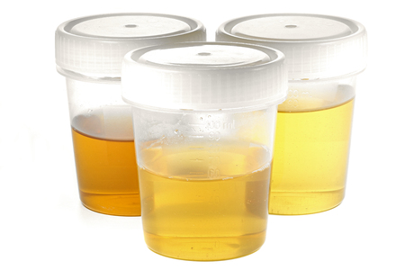 specimen cups for urinalysis isolated on white background Stockfoto