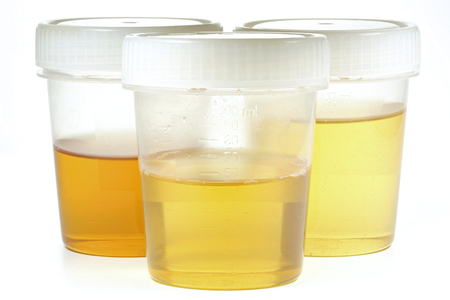 urinalysis: specimen cups for urinalysis isolated on white background Stock Photo