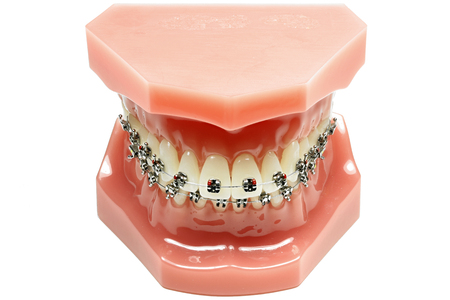 tooth model with metal wired dental braces isolated on white background Stock Photo
