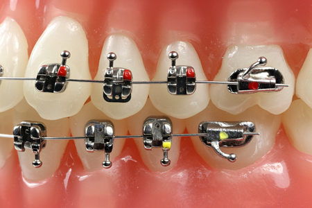 molars: tooth model with metal wired dental braces