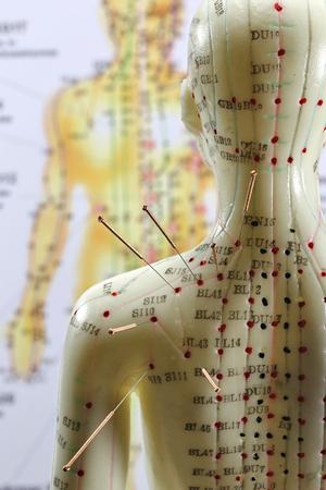 Weibliches Akupunkturmodell mit Nadeln in der Schulter Standard-Bild - 89510770