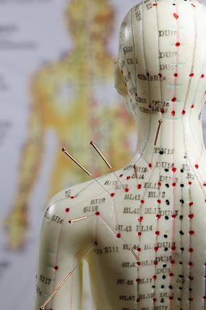 Weibliches Akupunkturmodell mit Nadeln in der Schulter Standard-Bild - 89532563
