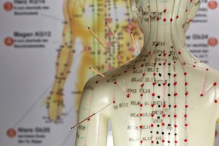 Weibliches Akupunkturmodell mit Nadeln in der Schulter Standard-Bild - 89907971