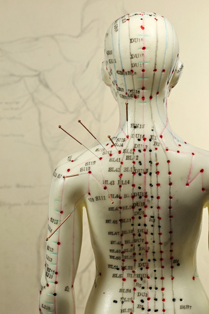 female acupuncture model with needles in the shoulder Stockfoto