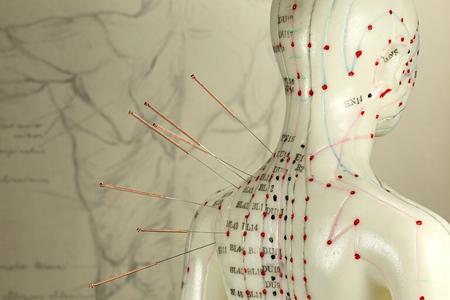 肩に針を持つ女性鍼灸モデル