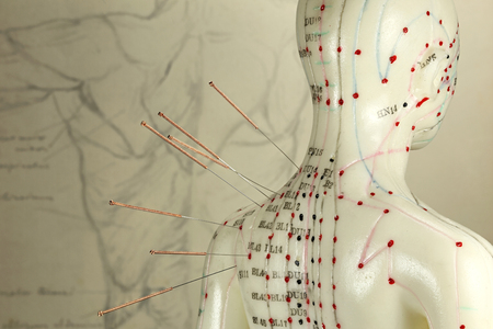 female acupuncture model with needles in the shoulder 스톡 콘텐츠