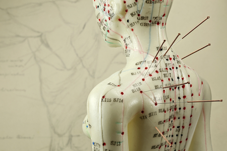 female acupuncture model with needles in the shoulder Foto de archivo
