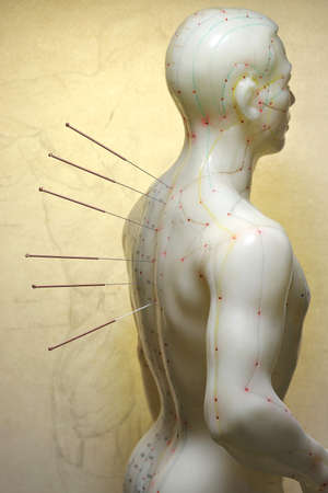 male acupuncture model with needles in the backbone