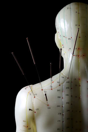 male acupuncture model with needles in the left shoulder against black background