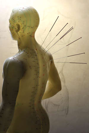 male acupuncture model with needles in the right shoulder