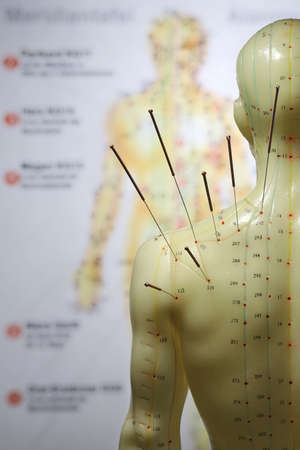 male acupuncture model with needles in the left shoulder