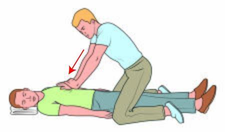 Heimlich maneuver on the ground - First aid