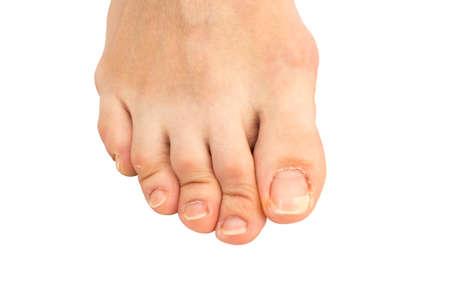Closeup of  human foot  with a cracked and peeling toe nail on the largest toe Standard-Bild