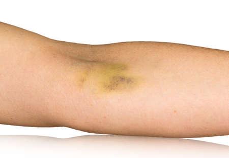 hematoma: Bruise on hand Stock Photo