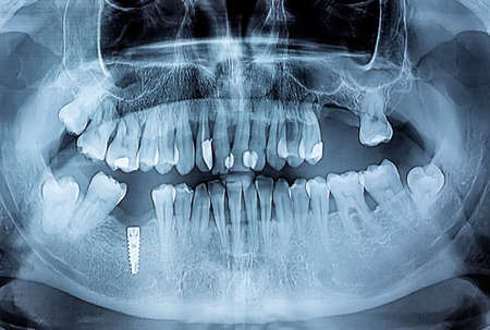 Dental x-ray with periodontitis problems, decayed teeth and implant