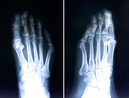 X-ray of foot fingers.Radiography with deformed toes.Hallux valgus