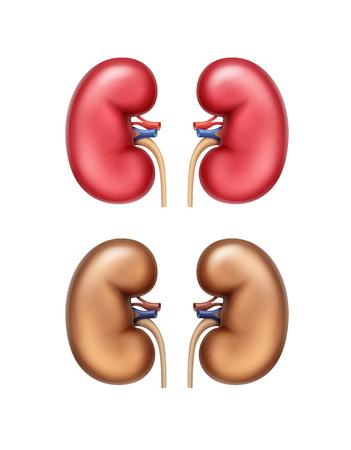 Vector realistische rode gezonde en bruine zieke menselijke nieren vooraanzicht close-up geïsoleerd op een witte achtergrond