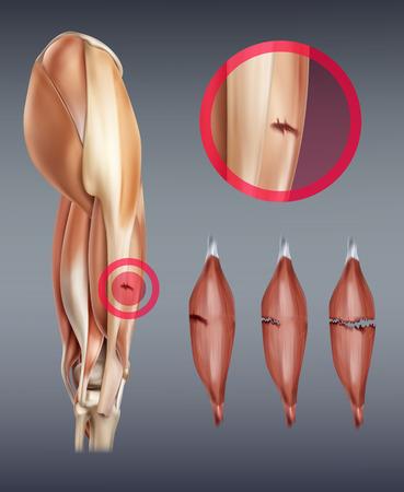 Ilustración de vector de lesión del músculo de la pierna con ruptura en diferentes etapas. Aislado en el fondo Ilustración de vector