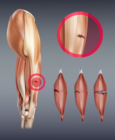 Vector illustration of leg muscle injury with rupture at different stages. Isolated on background Stock Illustratie