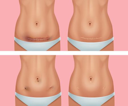 Vektorsatz frischer und verheilter Narben am Körper nach dem Unterleib, Wunde aus einer Operation zur Entfernung von Blinddarmentzündung auf rosafarbenem Hintergrund Vektorgrafik