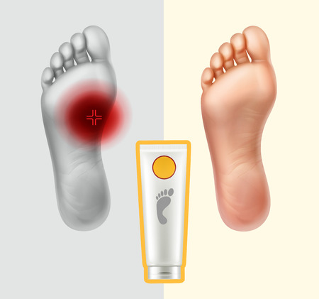 Vector illustration of soles with painful point and healthy. Cream for skin care and neutralization of pain