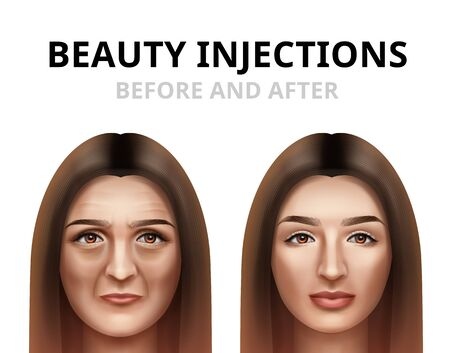 Realistic before and after vector illustration of woman having facial beauty injection.