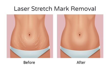 Vector realistic illustration of before and after laser strechmarks removal