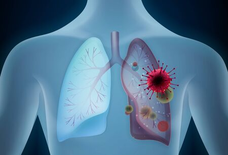 Lungs affected by a COVID-19 vector illustration