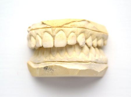 front teeth: Plaster impression of teeth with small gap in front teeth (diastema) - isolated