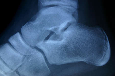 irradiate: x-ray ankle