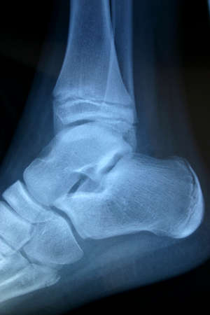 irradiation: x-ray ankle