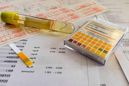 Reageerbuis voor urine onderzoek
