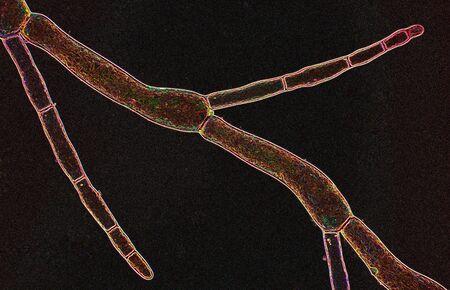 filamentous: Abstract polarizing micrograph of a filamentous marine algae from Niantic Bay, Connecticut, taken at 200x.
