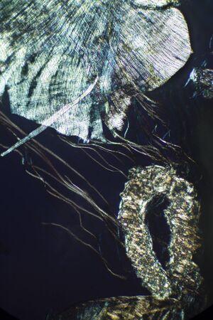 lombriz de tierra: Resumen, micrograf�a polarizando muestra de tejido de una lombriz de tierra. Tomado en 100x. Foto de archivo