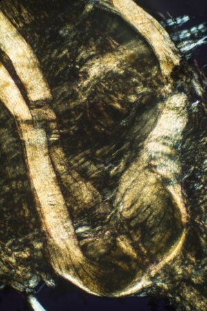 micrograph: Abstract, polarizing micrograph showing muscle tissue from an earthworm. Taken at 100x.