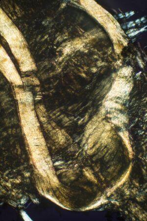 lombriz de tierra: Resumen, polarizando micrografía que muestra el tejido muscular de una lombriz de tierra. Tomado en 100x.