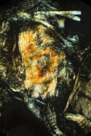 lombriz: Resumen, polarizando micrograf�a que muestra el tejido muscular de una lombriz de tierra. Tomado en 100x.