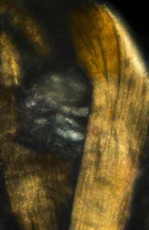 lombriz de tierra: Resumen, polarizando micrografía de las fibras musculares de una lombriz de tierra, tomada en 200x.