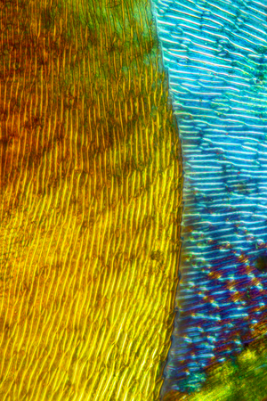 micrograph: Polarizing micrograph of leaf cells in Fontinalis moss from Connecticut, taken at 100x. There are two leaves in the image, crossed.