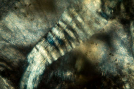lombriz de tierra: Resumen, polarizando micrograf�a de las fibras musculares de una lombriz de tierra, tomada en 200x.