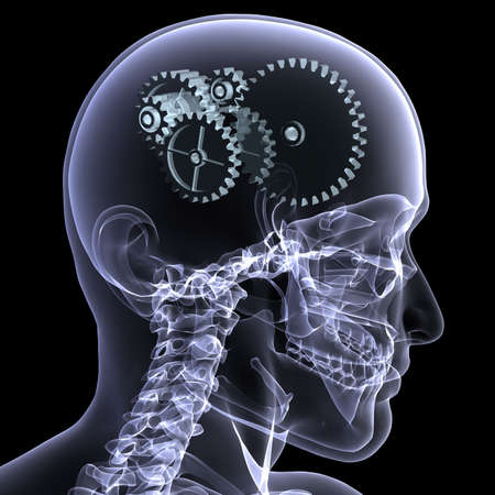 radiogram: Close-up X-Ray of a male skeleton head with a series of gears for the concept of thought. Isolated on a black background